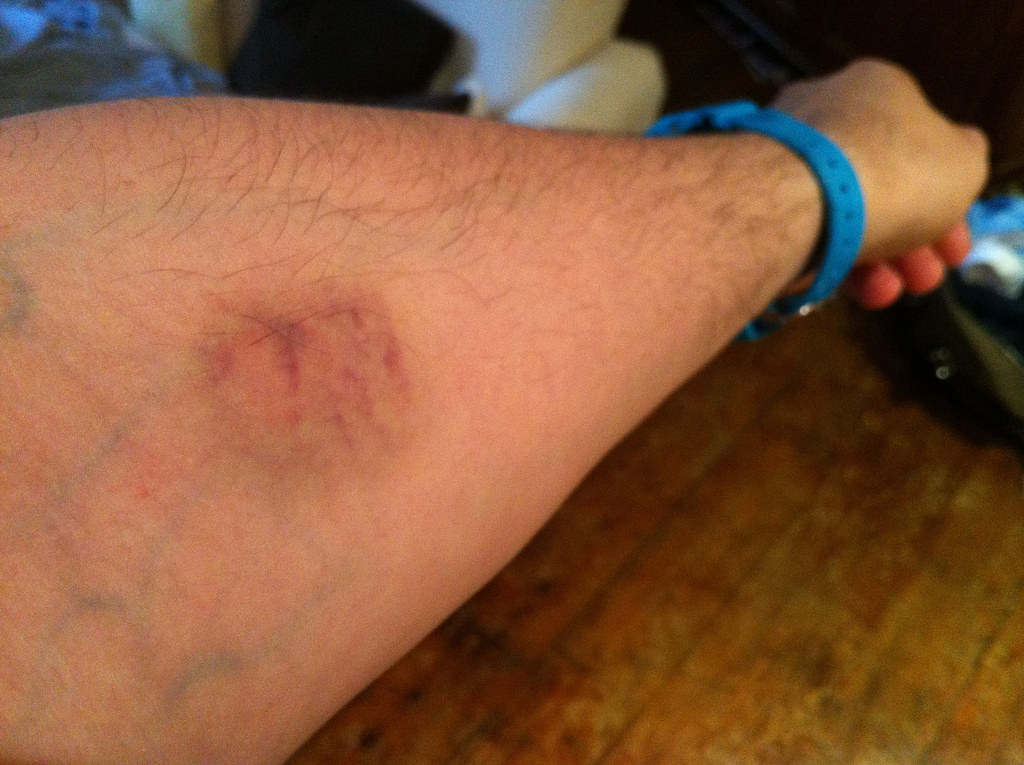 How to Treat Paintball Bruises and Welts?