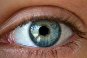 Brown Spots on Eyes
