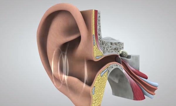 Noise in Ear